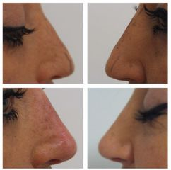Rinofiller - Studio Dermatologico Ricciuti