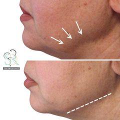 Filler - Studio Dermatologico Ricciuti