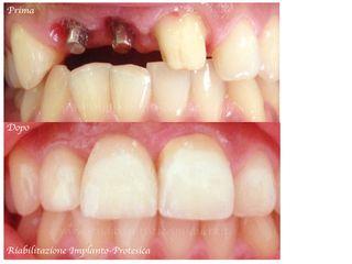 implantologia prima e dopo