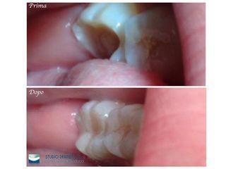 Recupero dentale prima e dopo