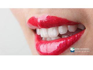 Estetica dentale faccette