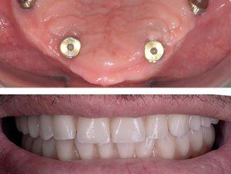 Dentisti-763865