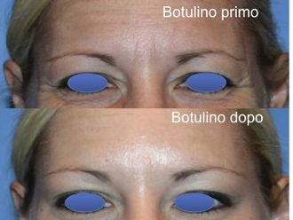 Botulino-748643