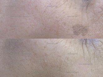 Macchie della pelle-752090