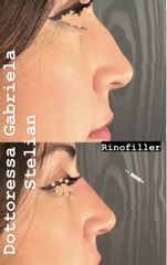 Rinofiller - Dott.ssa Gabriela Stelian