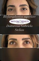Blefaroplastca superiore - Dott.ssa Gabriela Stelian