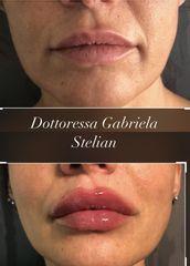 Filler labbra - Dott.ssa Gabriela Stelian