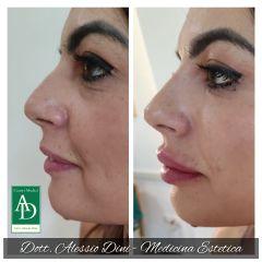 Filler labbra e naso - Dott. Alessio Dini