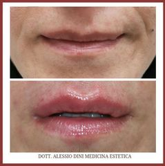 Filler labbra - Dott. Alessio Dini