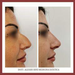Rinofiller - Dott. Alessio Dini