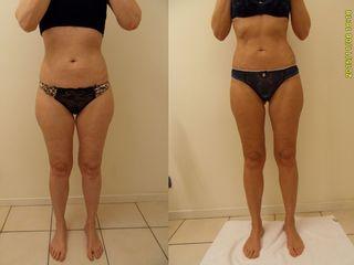 Risultati su addome, cosce e gambe con Clinica Cellulite