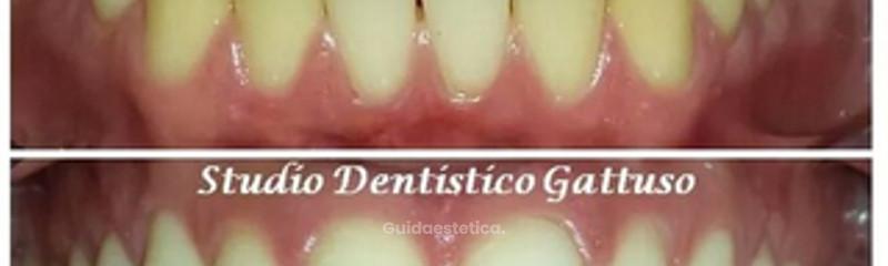 Sbiancamento denti.jpg