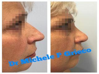 Rinosettoplastica prima e dopo