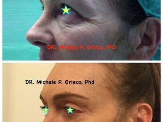 blefaroplastica superiore prima e dopo