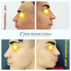 Rinoplastica - Dr. Michele P. Grieco, PhD