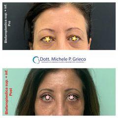 Blefaroplastica superiore + inferiore - Dr. Michele P. Grieco, PhD