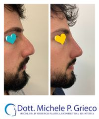 Rinofiller - Dr. Michele P. Grieco, PhD