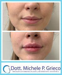 Filler labbra - Dr. Michele P. Grieco, PhD