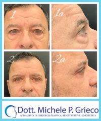 Blefaroplastica - Dr. Michele P. Grieco, PhD