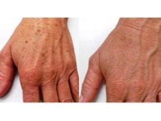 Laserterapia-751521