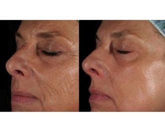 Laserterapia-751528