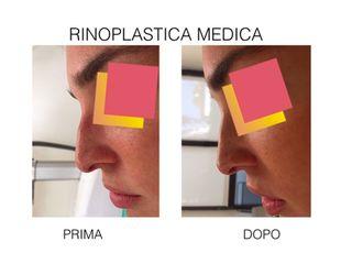 rinoplastica medica prima e dopo