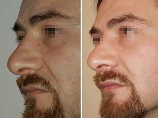 Angioma periorbitario prima e dopo