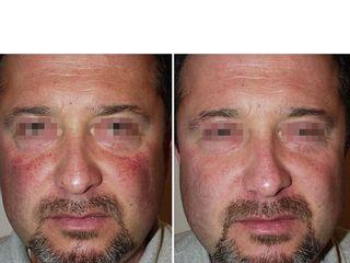 Capillari zigomi prima e dopo