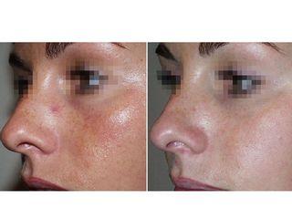 Capillari volto prima e dopo