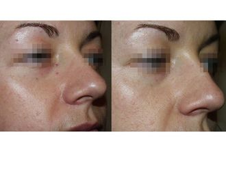 Laserterapia-751543