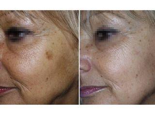 Discromia viso prima e dopo
