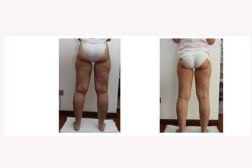 Carbossiterapia arti inferiori per cellulite