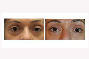 Acido ialuronico occhiaie