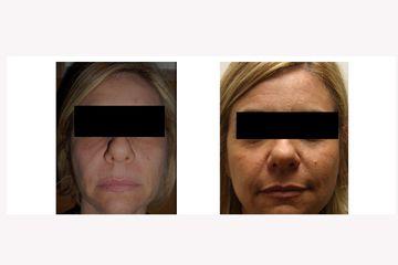 Radiesse e acido ialuronico full face