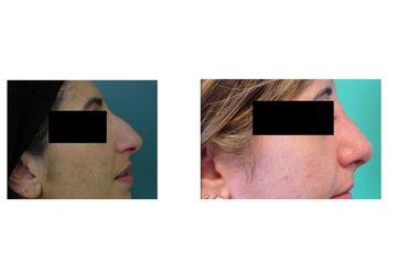 Rinoplastica donna prima e dopo