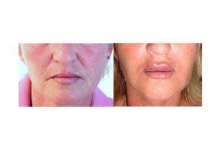 Pre e post acido ialuronico