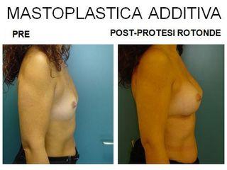 Mastoplastica additiva prima e dopo