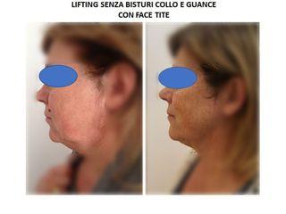 Lifting viso prima e dopo
