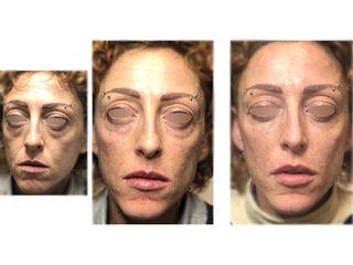 Eliminare occhiaie - Dott. Antonio Licata