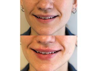 Filler labbra - Dott. Antonio Licata