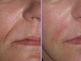 Filler nasogeniene prima e dopo