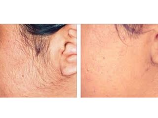 depilazione laser prima e dopo