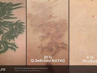 Rimozione tatuaggio prima dopo