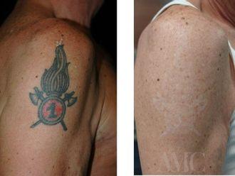 Rimozione tatuaggi-769301