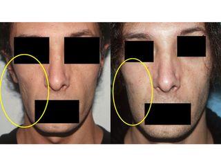 Lipofilling prima e dopo