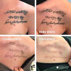 Rimozione tatuaggi - Poliambulatorio Cosmer Torino