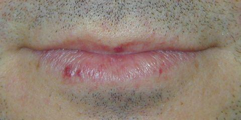Angioma sul labbro inferiore