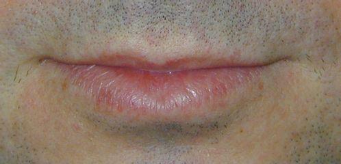 Angioma trattato sul labbro inferiore