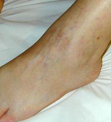 Capillari dilatati sul dorso del piede