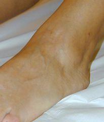 Capillari trattati sul dorso del piede